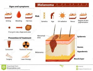 Skin cancer prevention tips to help you stay healthy